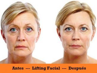 Beneficios del Lifting Facial