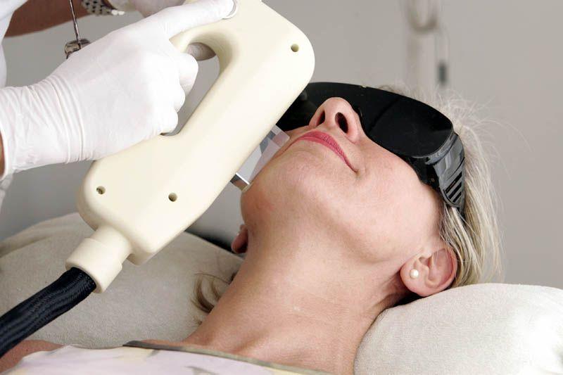 quemaduras depilacion laser