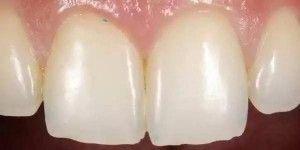 Microgránulos de los dentífricos