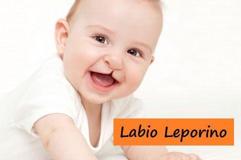 Labio Leporino en los Bebé.